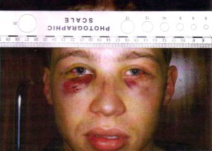 James injuries
